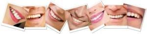 Zahnfarbbestimmungsset