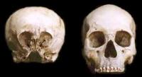 De Starchild Skull in vergelijking met een menselijke schedel