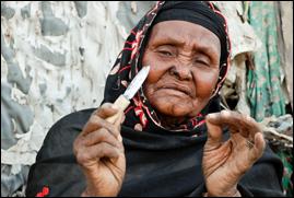Vrouwenbesnijdenis in derde-wereldlanden is in feite vergelijkbaar met plastische chirurgie aan schaamlippen.