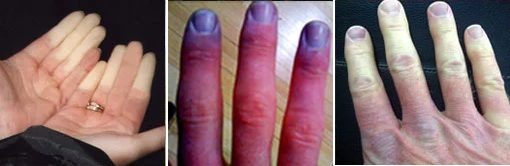 handcolors - How a potato can improve blood supply