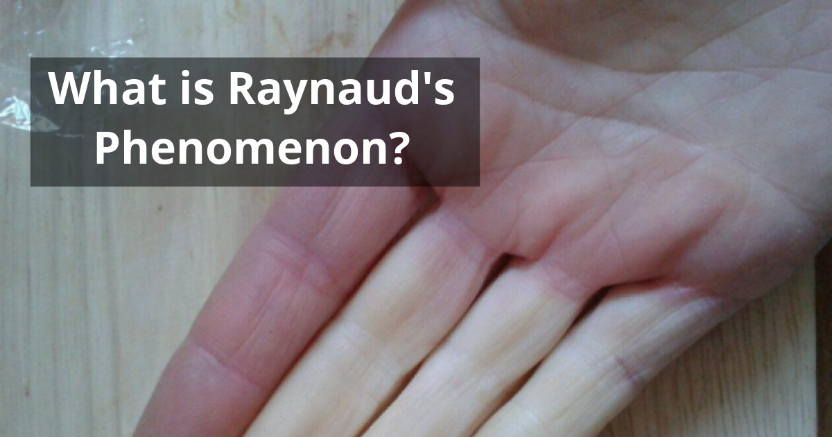 what is raynauds phenomenon - Raynaud's Phenomenon