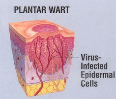 How It Works – WARTICIDE