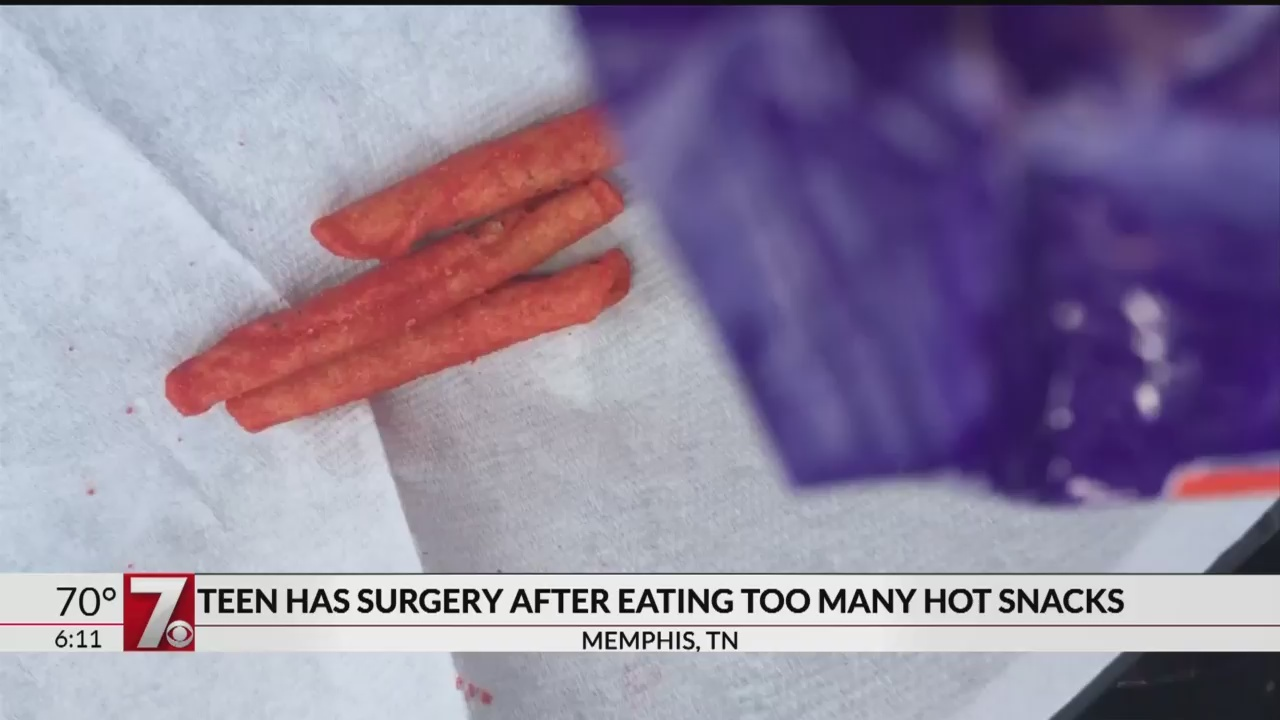 Teen_has_surgery_after_eating_too_many_h_0_20180724124449-846624087