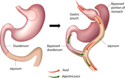 Roux En Y Gastric Bypass Rny Weight Loss Surgery Waverly Health