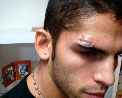 Linares lesionado y posterga defensa AMB de marzo