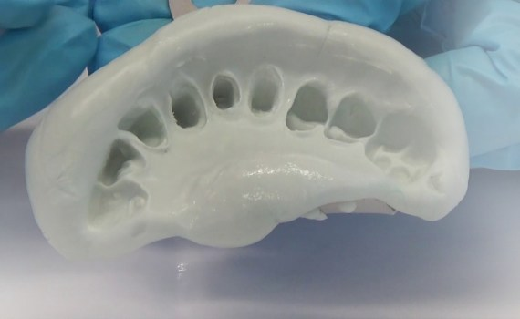 modelagem odontológica