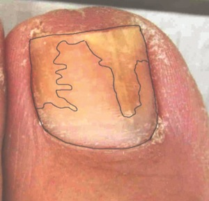 Before Treatment Nail Fungus Toe 1