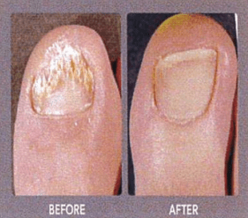toe with versus without toenail fungus