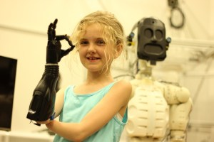 Photo of 10 year old Tilly with robotic hand