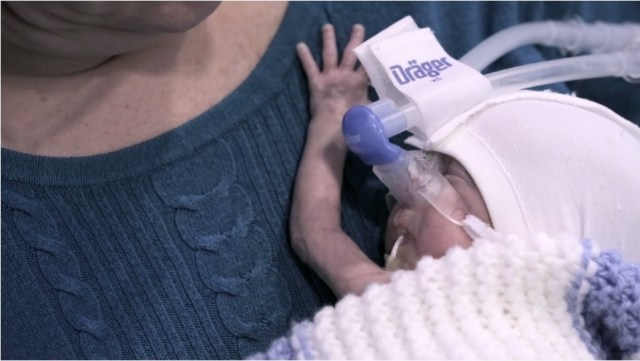 preventing cerebral palsy in preterm births