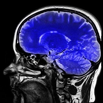 brain 2_1527890009187.jpg.jpg
