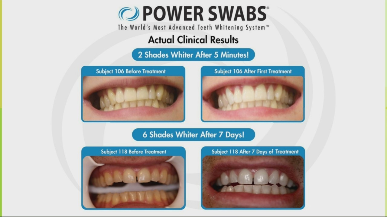 Power Swabs: Look Younger with a Whiter Smile