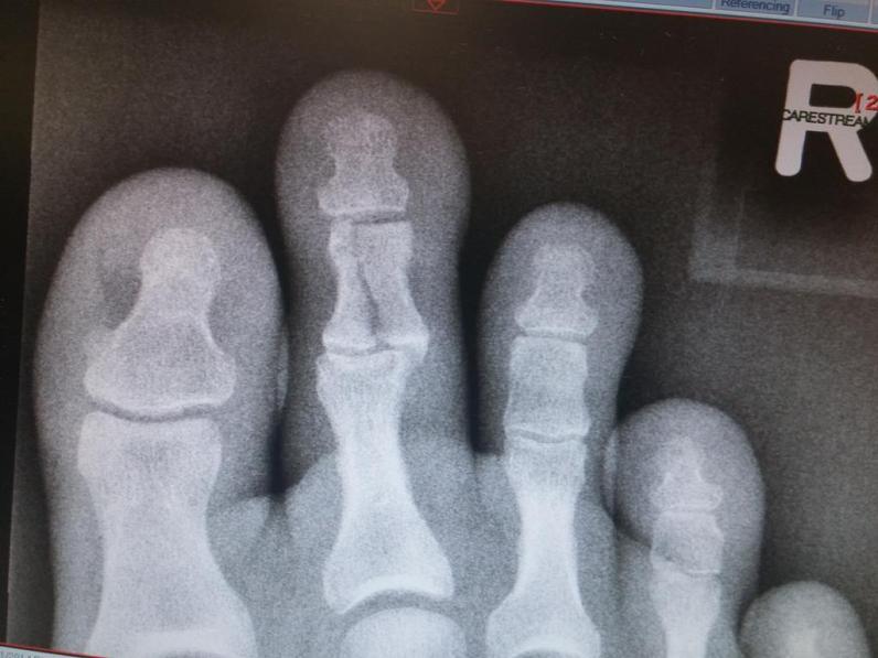 Broken Index Toe - Karate Injury