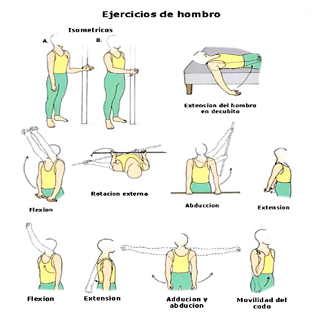 Ejercicios para el hombro con artritis reumatoide