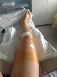 medard-jambe-operee