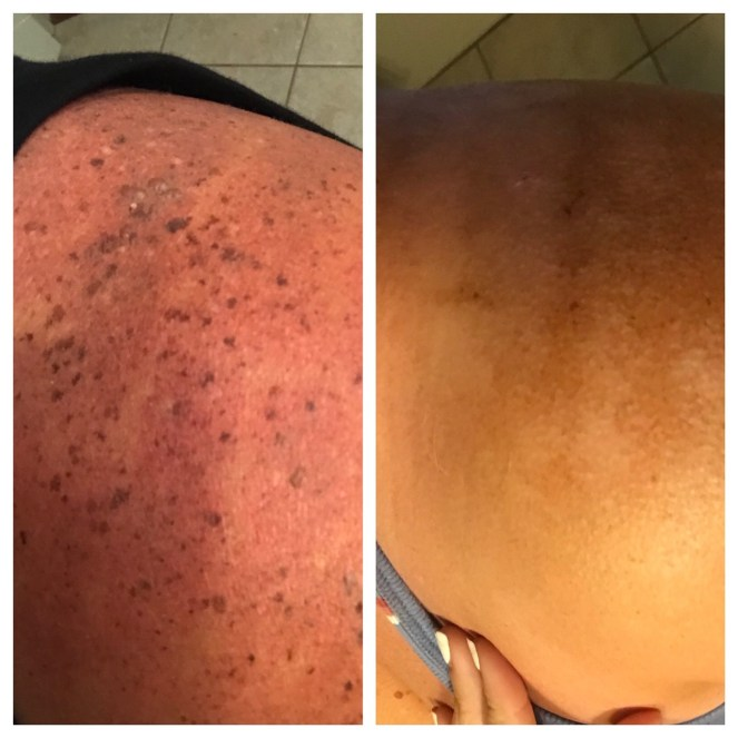 Tiffany's before and after of laser treatments for sun spot removal