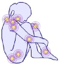 Leven met fibromyalgie, 6 tips