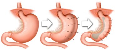 Gastric Plication Surgery