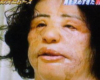 korea-surgery-addict Woman Addicted to Surgery Injects Oil Into Her Face picture