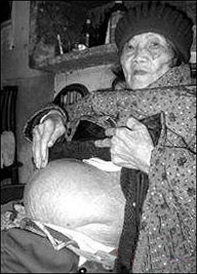 preglady Woman Delivers Stone Baby After 60 Year Pregnancy picture