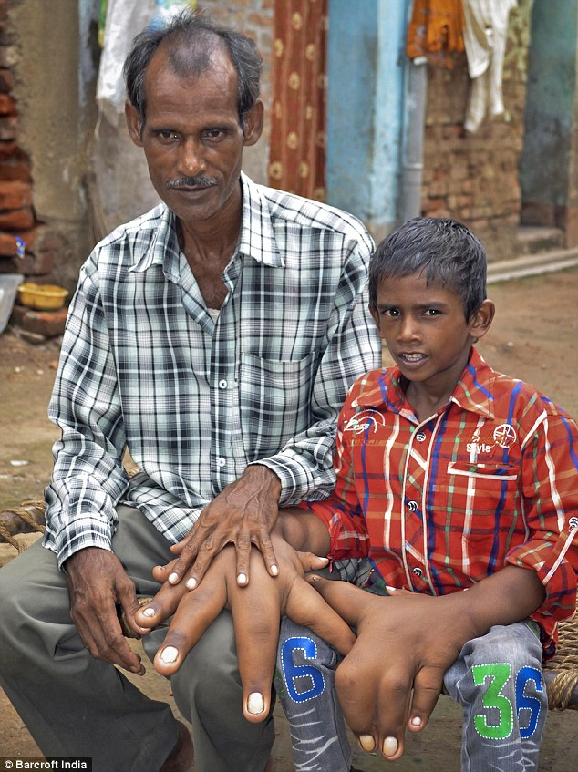 Kaleem and his father before his surgery