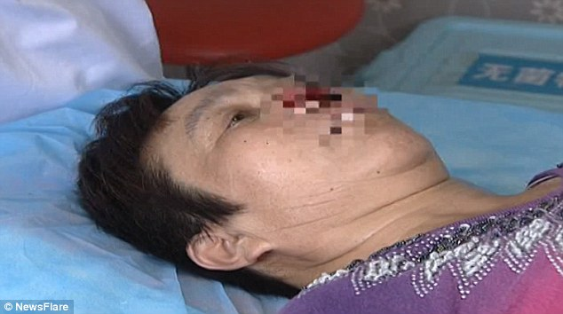 Close up image of woman whose nose was bitten off
