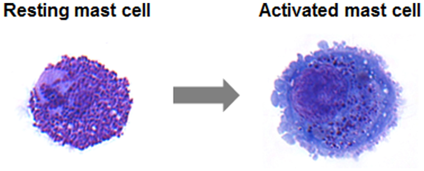 Diagnosing Mast Cell Activation Syndrome (MCAS) - Post 1 of 4 in series
