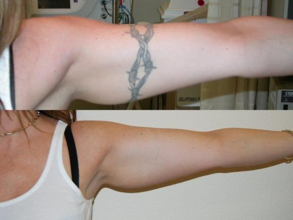 Painless Laser Tattoo removal in Dubai.