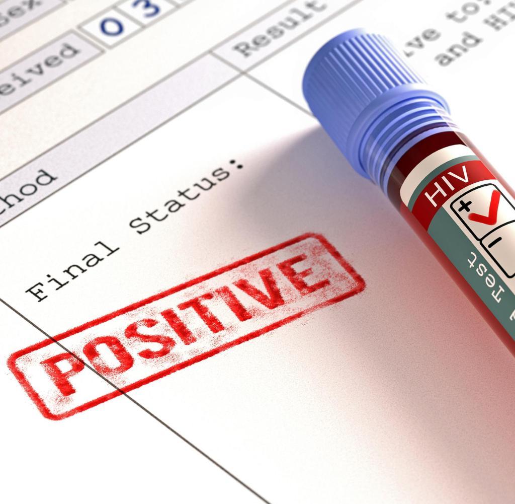 Aids Diagnose Hiv Wird In Vielen Fallen Zu Spat Entdeckt