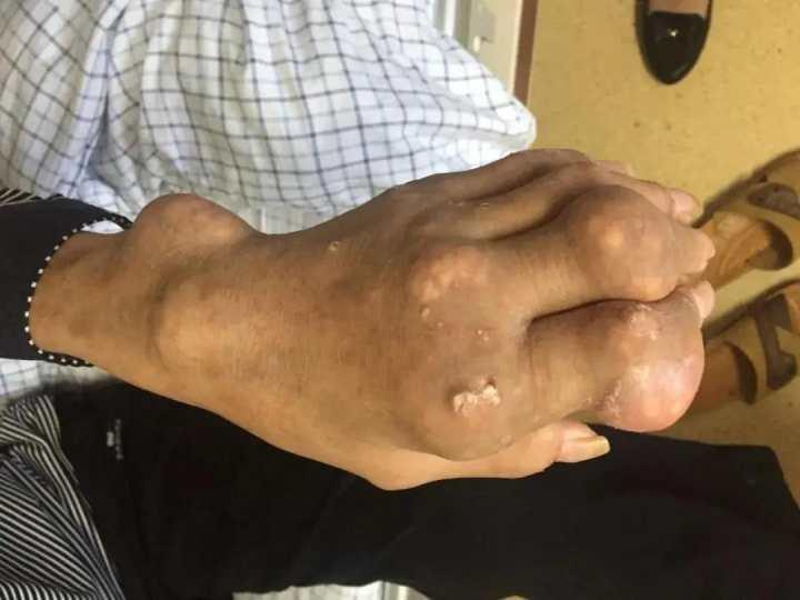 """30岁小伙手脚长满""""石头""""!医生叹:这个习惯害了他"""