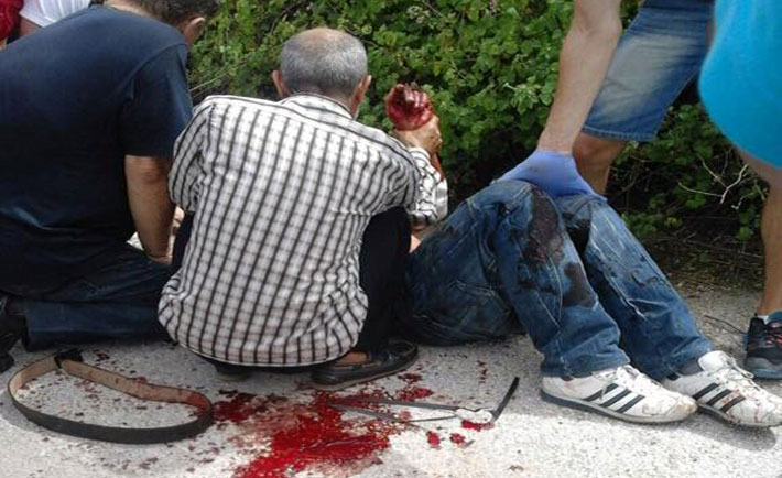 Uno dei profughi feriti. Foto dalla pagina Facebook di CalabriaXIdomeni