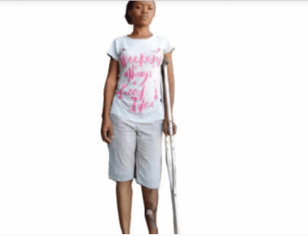 #EndSARS: I had three operations, use crutches after SARS men shot me – Hairstylist