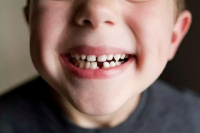 Close-up of boy showing gap toothed