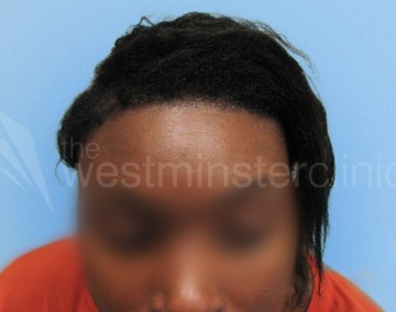 Afro Hair Transplant Westminster Clinic