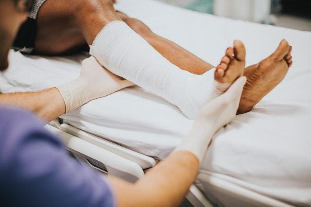 leg in a cast