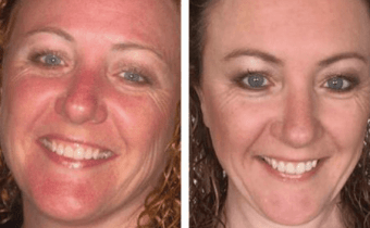 Skin changes with the Wheat Belly lifestyle