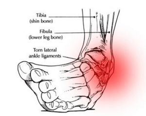 balance board benefits to preventing ankle sprain