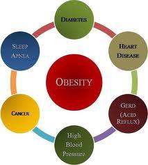 Obesity in Ireland Chart