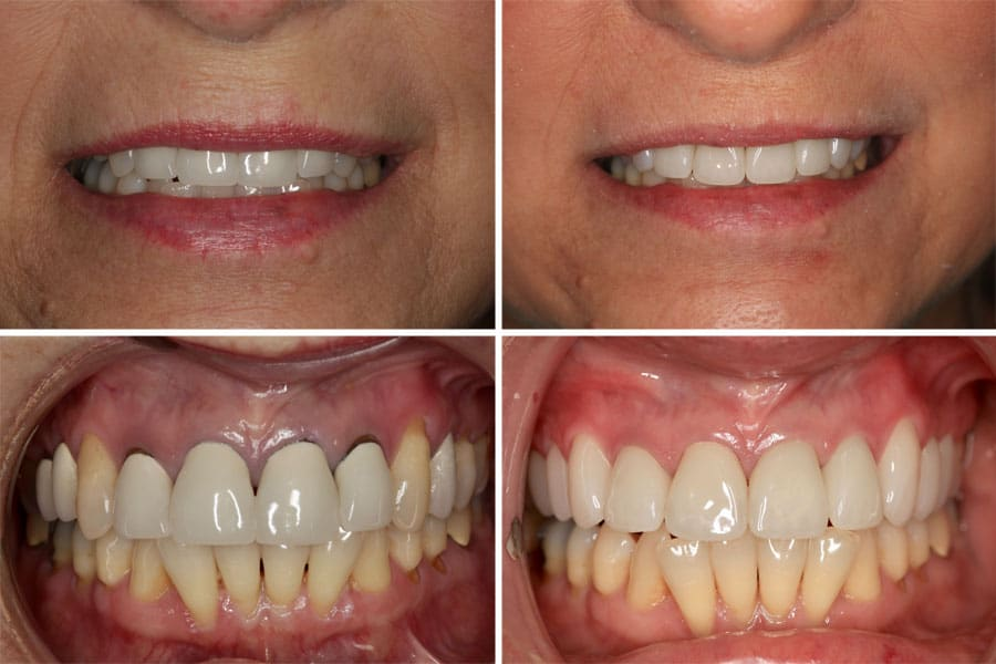 Dental before and after photos in Bowdon - Anterior Crowns