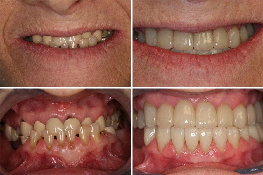 Dental before and after photos in Bowdon Anterior Crowns