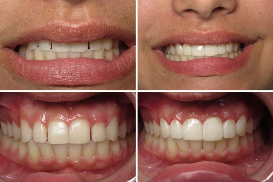 Dental before and after photos in Bowdon - Bonding