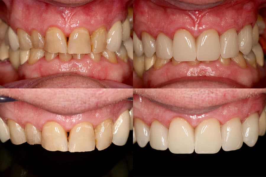 Dental before and after photos in Bowdon - Crown-in-a-Day
