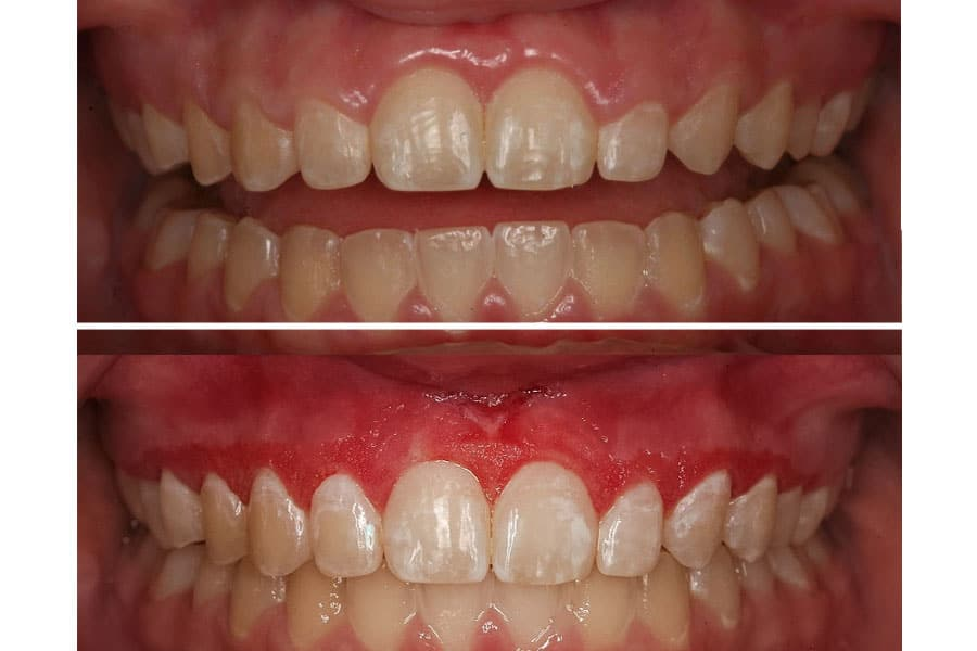 Dental before and after photos in Bowdon - Gum-Recontouring