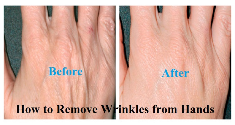How to Remove Wrinkles from Hands and Fingers Within a Month