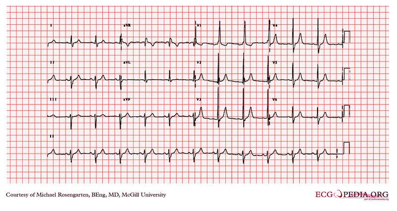 Endocarditis Electrocardiogram Wikidoc
