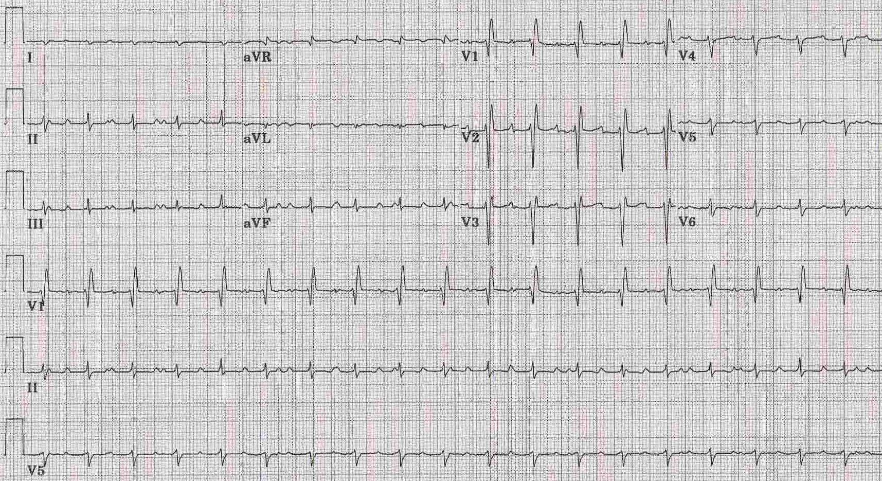 The Ekg Of Cardiac Transplantation