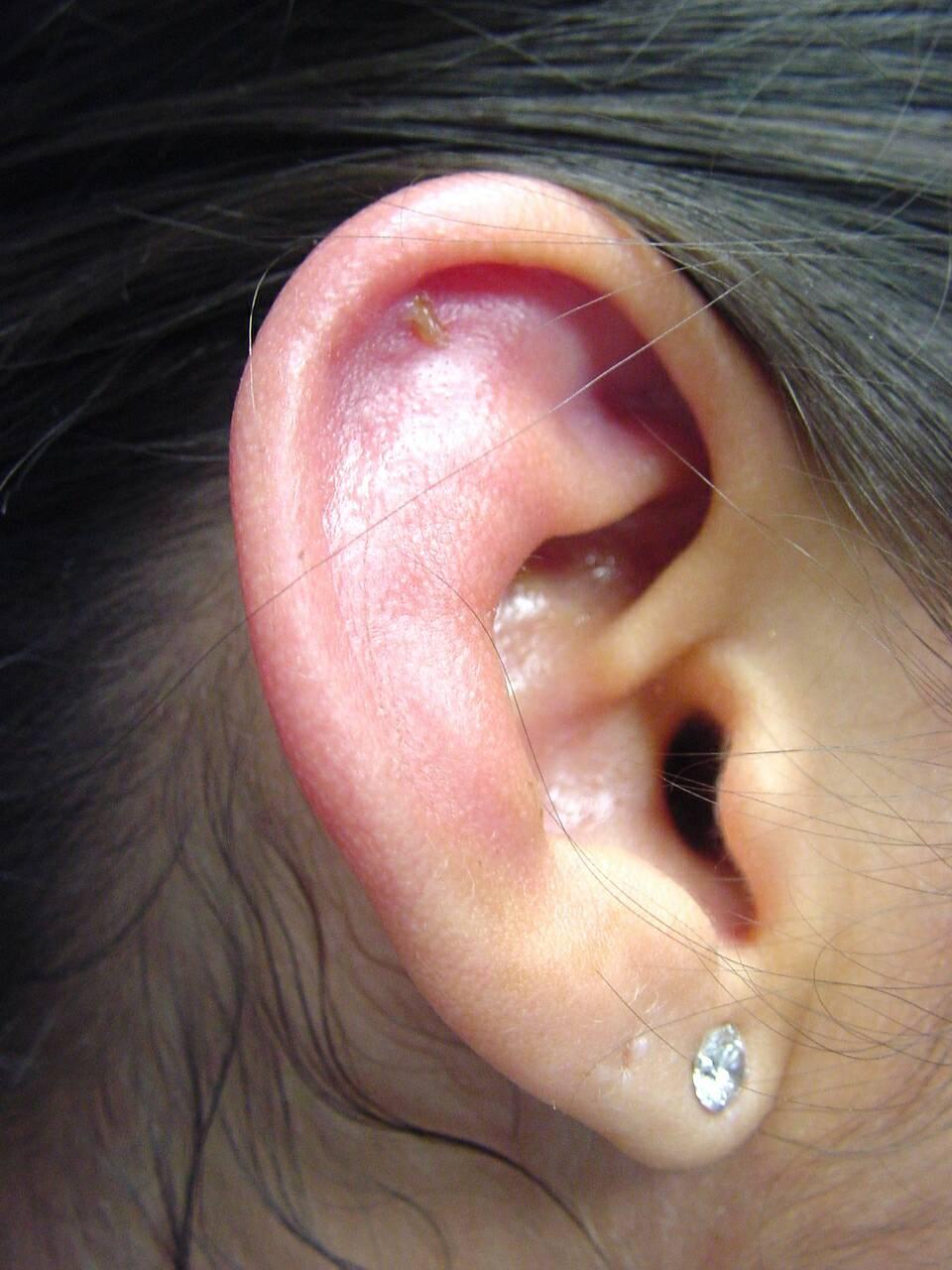 Auricular Perichondritis Wikidoc