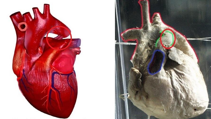 Patent Ductus Arteriosus Anatomy Wikidoc