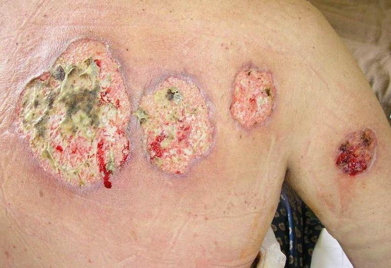 And Ulcerative Crohn Bowel Irritable Disease Colitis