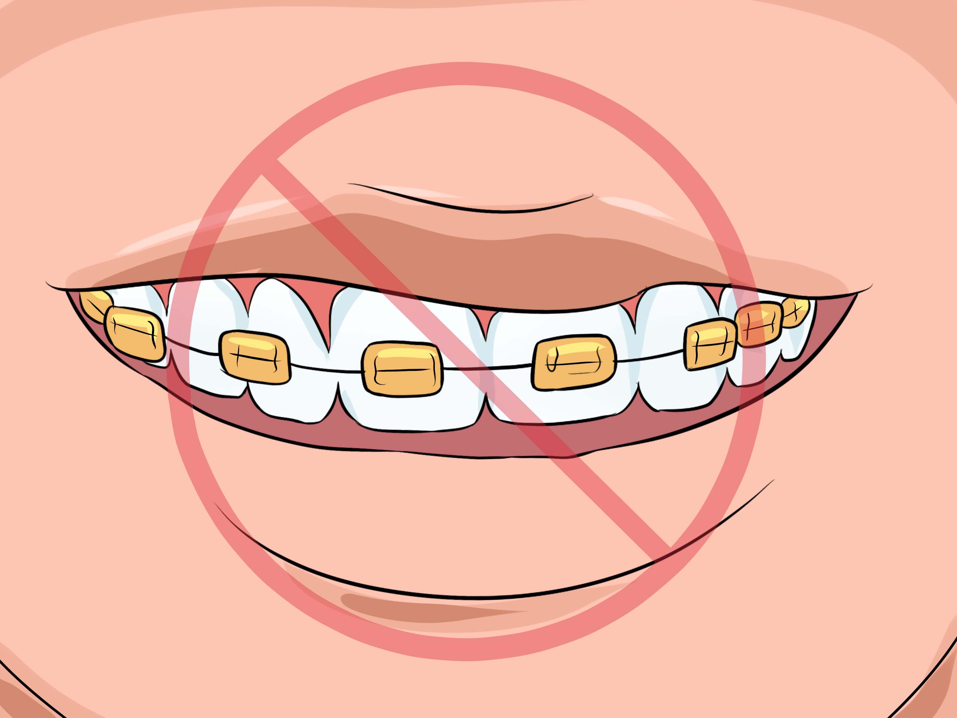 Come Scegliere Il Colore Dell Apparecchio Ortodontico